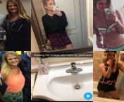 """F/25/5'8"""" [200 > 180 > 141 > 148 = 52lbs] 2015 to now. L column from T to B, 2015-2016. R column from T to B, 2017 to 2018. Center is 1/7/19. Autoimmune diagnosis in between. Exactly 4 yrs 3/21. Its a marathon not a sprint. NSFW from sreejita de xxx nu8 5 2015 sex video xxn co"""